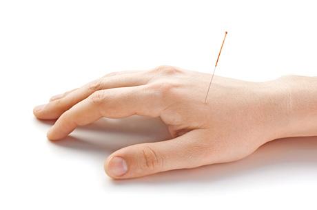 Wie funktioniert Akupunktur?