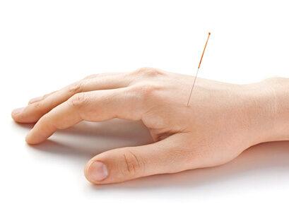 Akupunktur Naturheilpraxis Nidwalden Stans